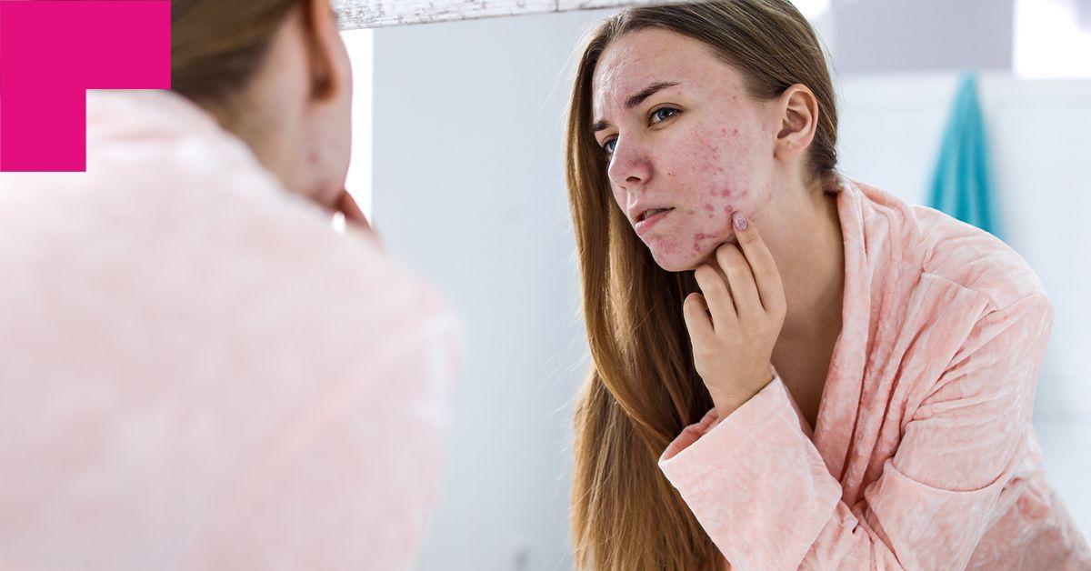 Pele com acne: cuidados essenciais para saúde e beleza